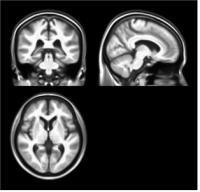 한국 노인 '표준 뇌' 개발됐다
