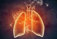 [메디체크]만성폐쇄성폐질환(COPD) 미리 예방하세요